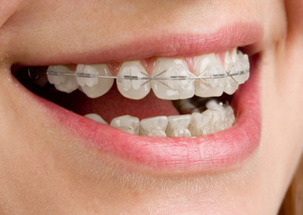 Ortodoncia, en CLÍNICA DENTAL CIURANA, CASTELLDEFELS