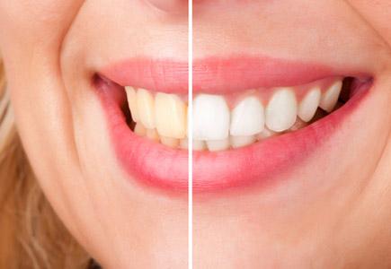 Blanqueamientos dentales en CLÍNICA DENTAL CIURANA, CASTELLDEFELS